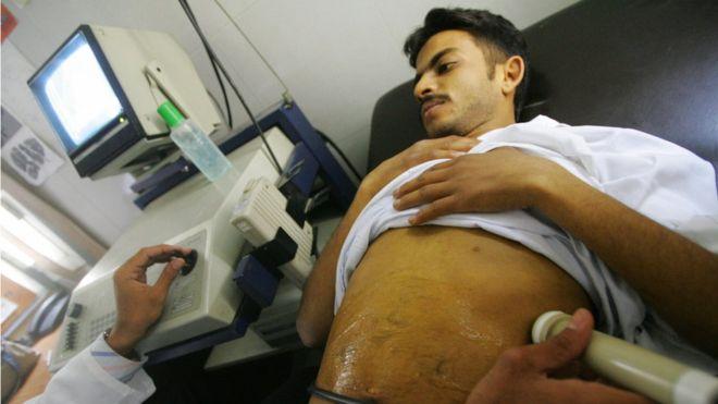 Démantèlement en Egypte d'un réseau international de trafic d'organes humains