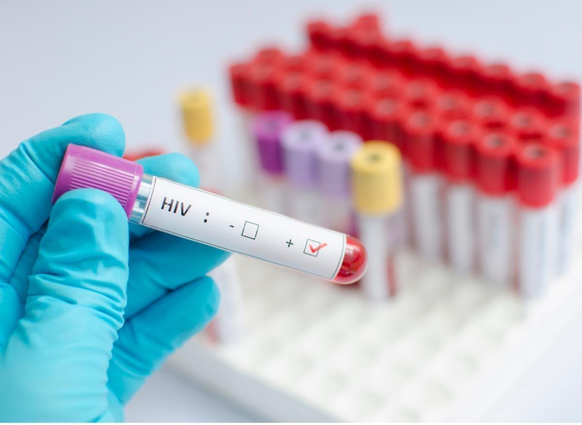 Des femmes séropositives stérilisées de force en Afrique du Sud